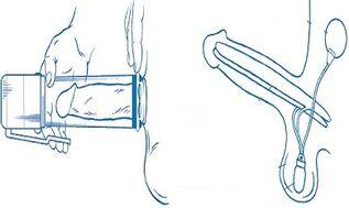 Kuidas suurendada ennast vahemalt 4 cm Liikme suurus 13 cm